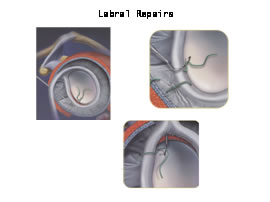 Labralrepair_illustration.jpg